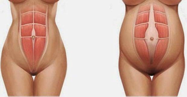 La diastasi addominale in una donna incinta (a destra)