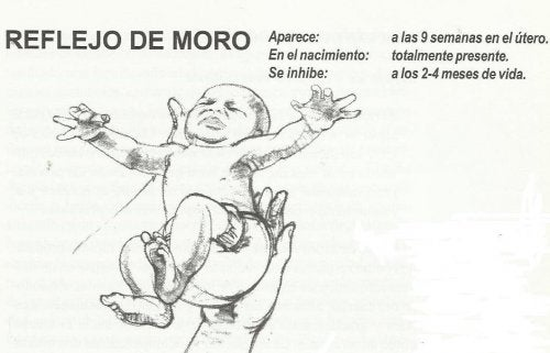 Riflesso di Moro.