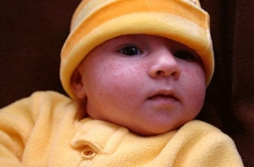 eruzione cutanea bebè