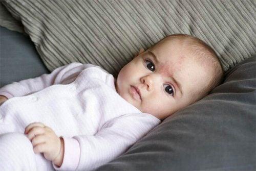 Le macchie dei neonati: quali sono le cause?