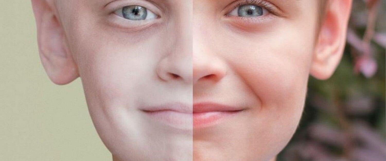 La leucemia infantile si manifesta attraverso numerosi cambiamenti della pelle