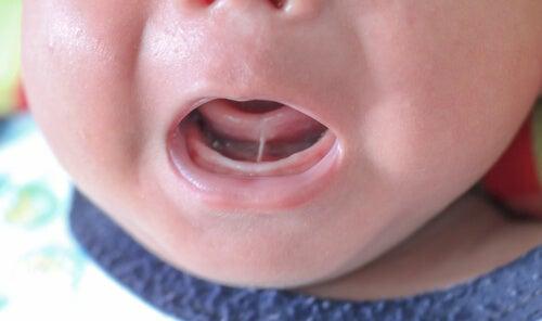 Anchiloglossia o frenulo linguale corto nel bambino