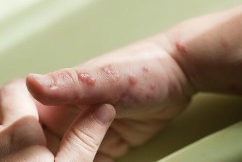 Herpes nei bambini mani