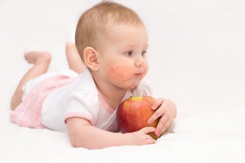 Bambina con herpes neonatale