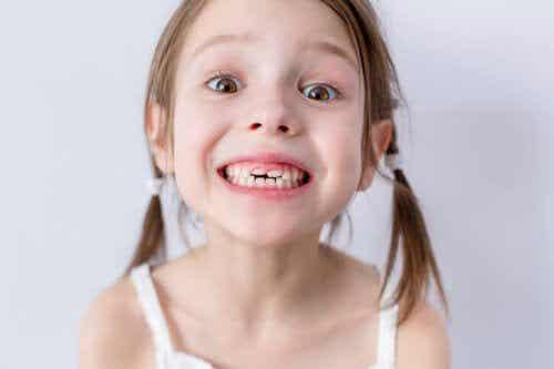 La caduta dei denti nei bambini: quando succede e in che ordine