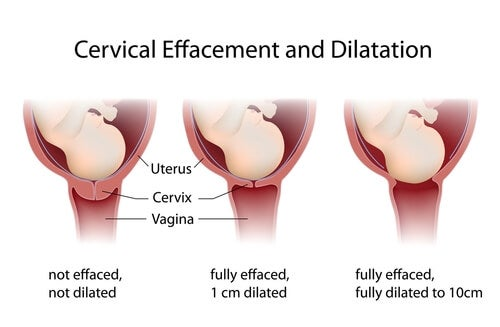 processo di dilatazione