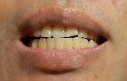 Macchie dentarie: come prevenirle