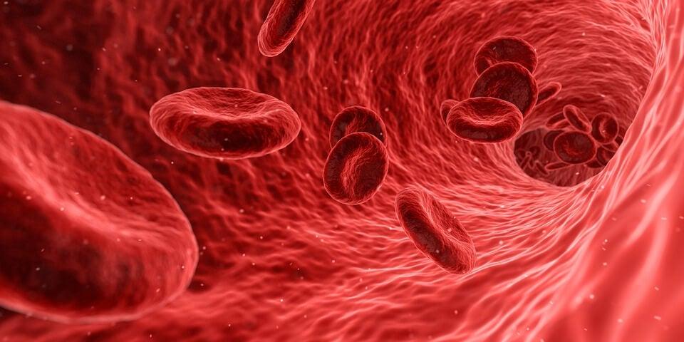 Globuli rossi sindrome di Hughes