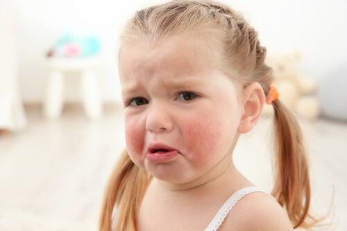 allergie alimentari più comuni nei bambini