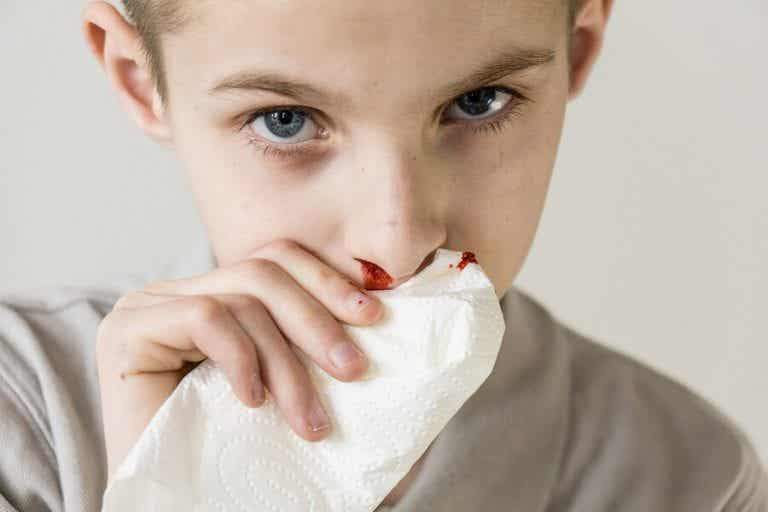 Perché a mio figlio esce sangue dal naso?