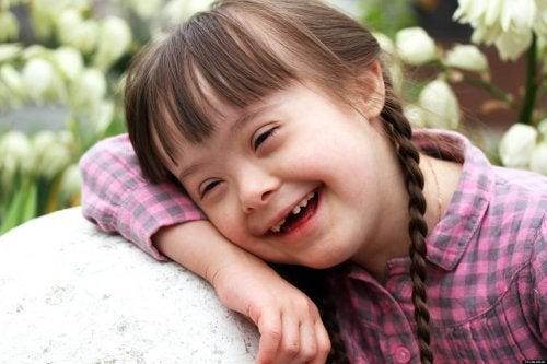 La sindrom di Down è detta anche trisomia 21 per la presenza di un cromosoma in più nel corredo genetico del bambino