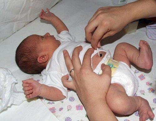 pulizia dell'ombelico bebè