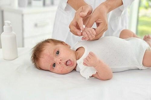 Bimba con dermatite atopica nei bambini curata dalla mamma