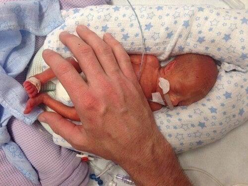 Carezza sul neonato più prematuro