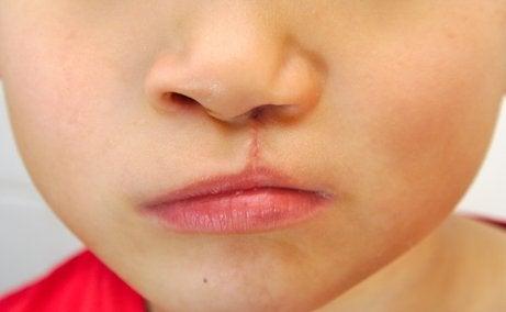 Malformazioni Cranio Facciali Nei Neonati Siamo Mamme