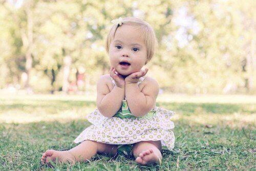 Bambina con sindrome di Down
