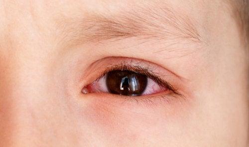 Emorragia sottocongiuntivale nei bambini: cosa fare