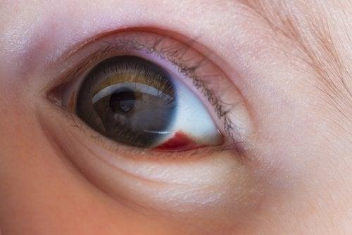 Sangue nell'occhio dei bambini