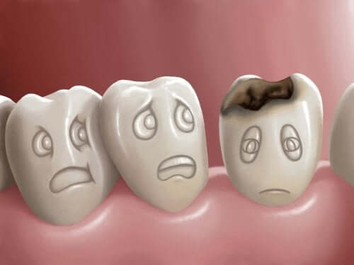 Che cosa sono le carie dentali e come è possibile prevenirle?