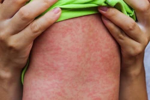 Le epidemie di morbillo e l'importanza della prevenzione