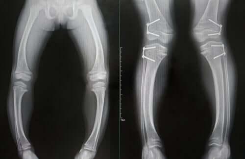 Radiografia alle ossa delle gambe con rachitismo