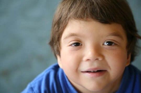 Bambino con sindrome di Klinefelter