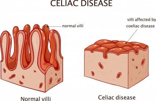 malattia celiaca particolare su villi intestinali