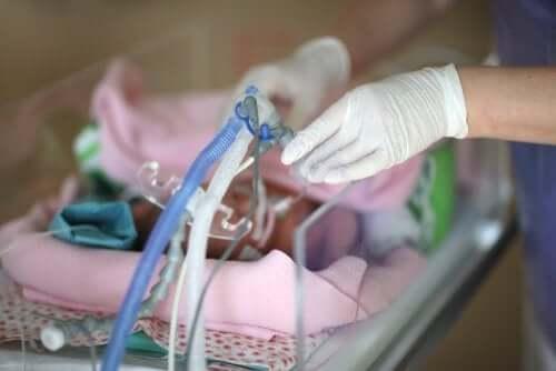 La sindrome da distress respiratorio nei neonati