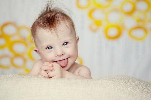La sindrome di Down e l'allattamento materno