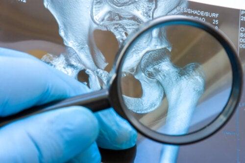 Displasia dell'anca nei bambini: cos'è e come si corregge?
